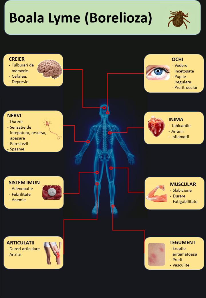 borrelioza durerii articulare