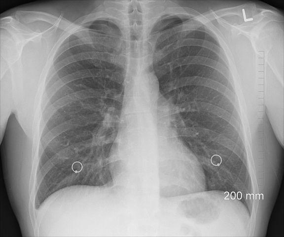 anemia Pneumonia xray 1476620  480